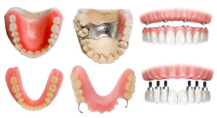 Протезирование зубов: современные методы и инновации