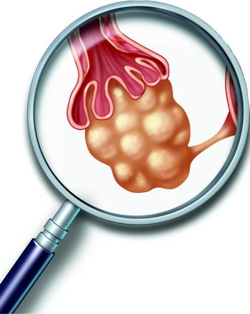 Кистозные изменения левого яичника. что такое кистозное изменение яичника