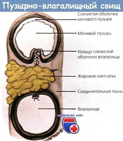 Пузырно-влагалищный свищ – причины, симптомы, диагностика и лечение