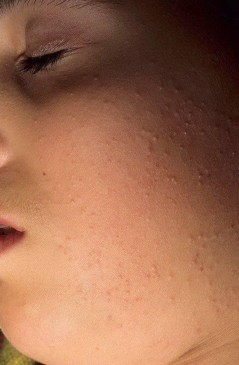 Гусиная кожа, или как избавиться от «птичьих следов» на ногах?