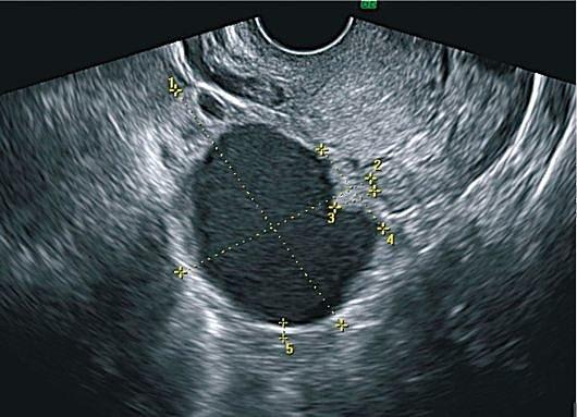 Что такое муцинозная киста яичников и как лечить
