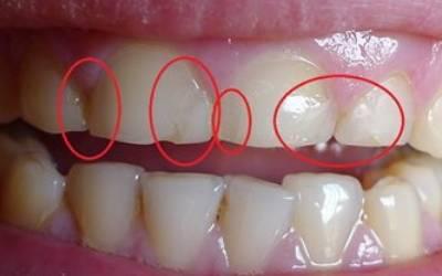 Почему резко начали портиться зубы