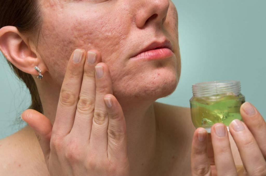 Белые угри на лице (милиумы, просянки). причины, как избавиться