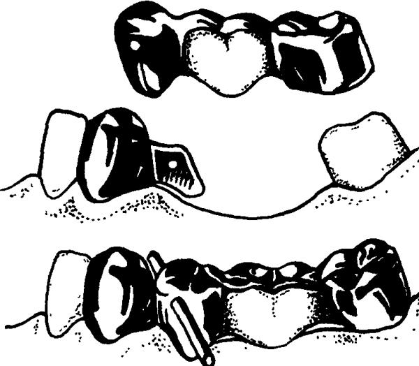 Составные части мостовидного протеза