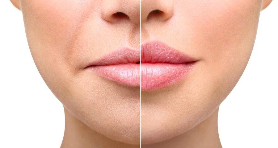 Простые упражнения для увеличения губ