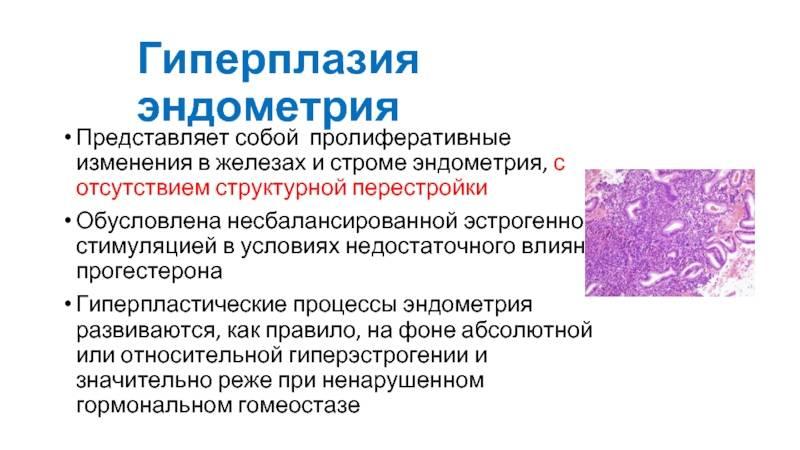 Популярные вопросы о лечении гиперплазии эндометрия матки