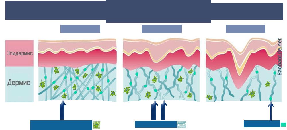 Работает ли гиалуроновая кислота в косметике