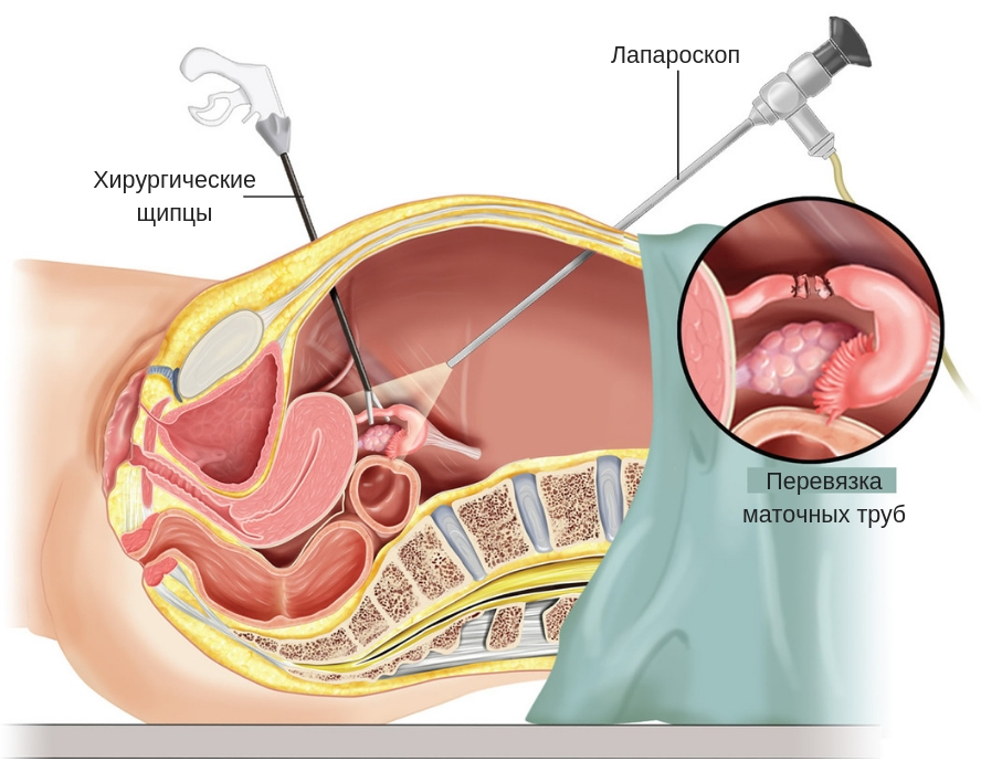 Плюсы и минусы процедуры перевязки фаллопиевых труб