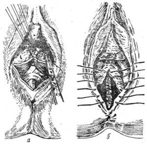 Разрезы и разрывы во время родов
