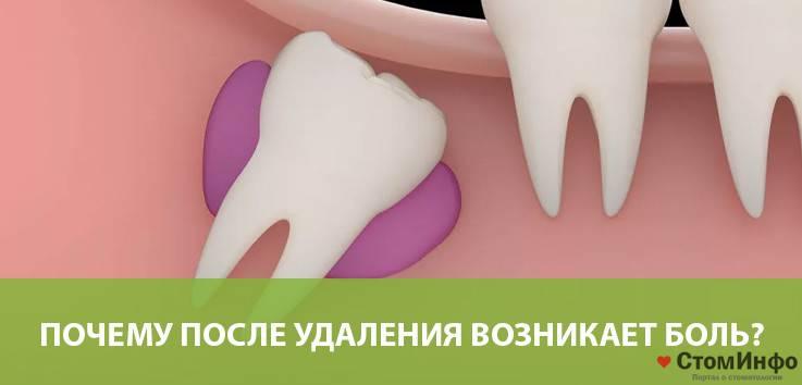 Больно ли удалять зубы