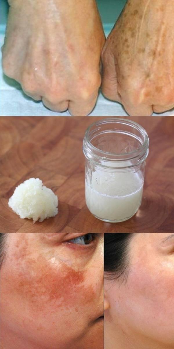 Как убрать пигментные пятна на лице после родов