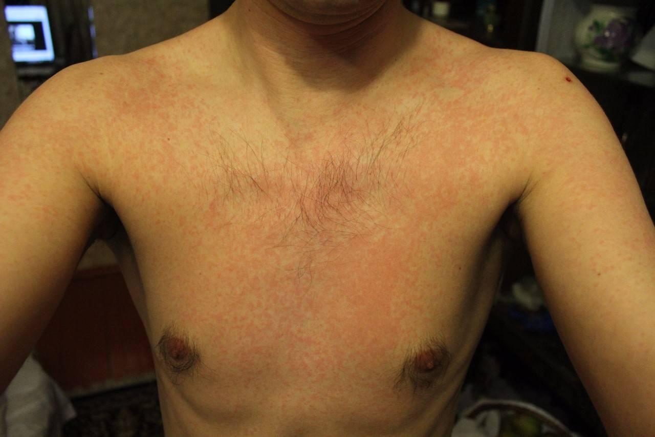 Может ли сыпь на груди у женщин быть признаком заболевания?