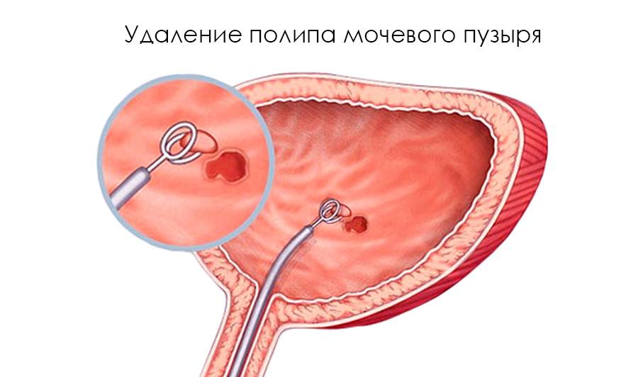 Как лечить полип на мочевом пузыре: таблетки, свечи и гомеопатия