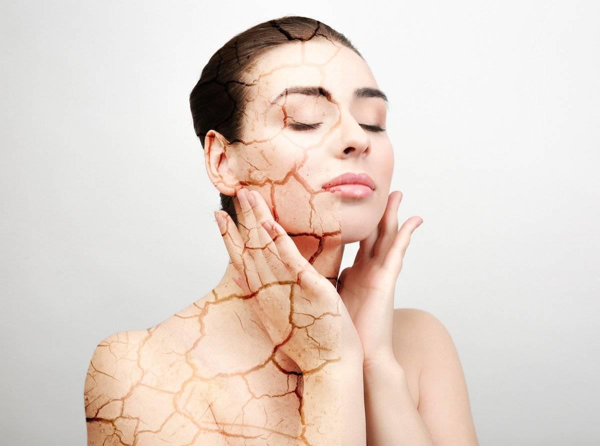 Фотостарение кожи: причины, последствия, методы лечения и профилактики
