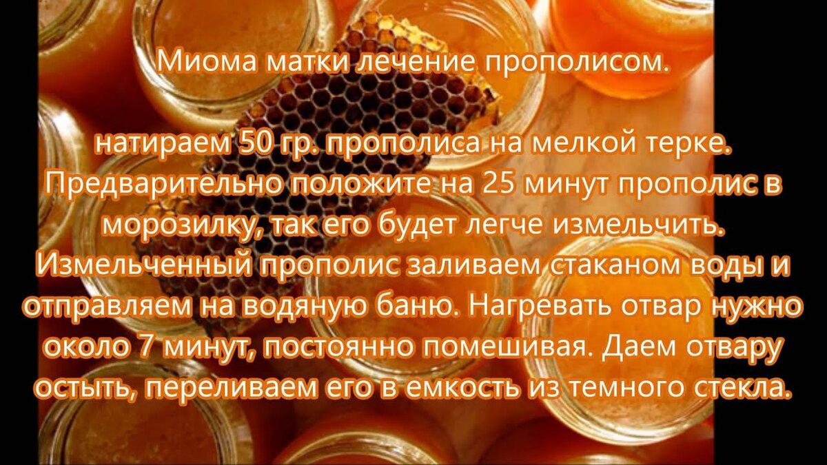 Лечение миомы прополисом, рецепт лечения в домашних условиях