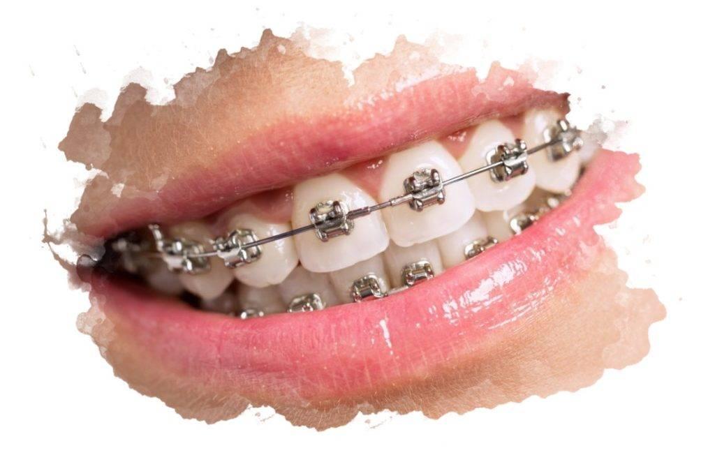 Какие типы брекетов лучше ставить взрослому пациенту, как выбрать подходящие модели для зубов?