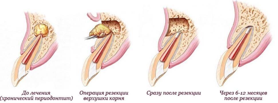 Отек десны после удаления зуба – норма или повод обратиться к врачу?
