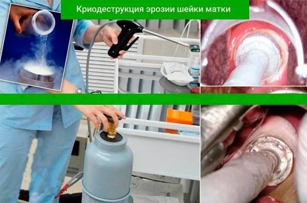 Лечение радиоволнами дисплазии шейки матки