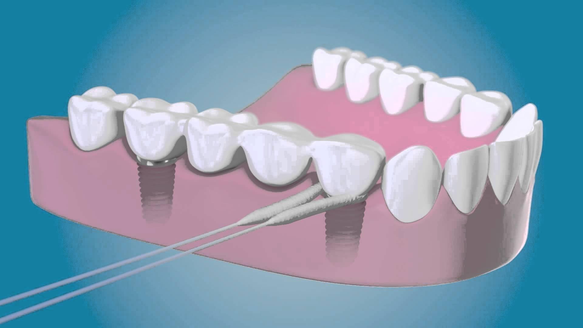 Советы и рекомендации специалистов после имплантации зубов