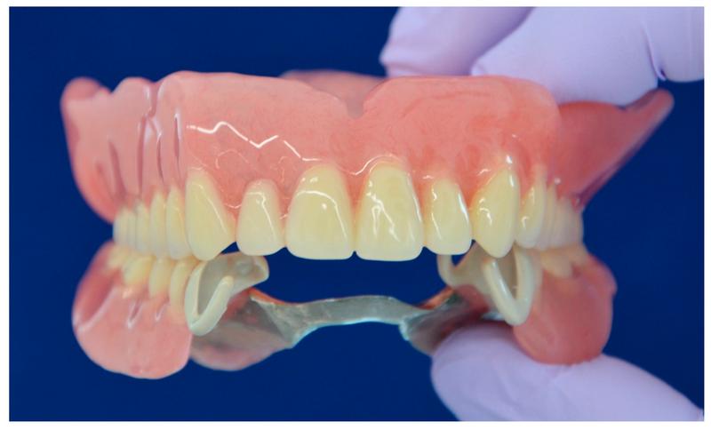 Мостовидные зубные протезы