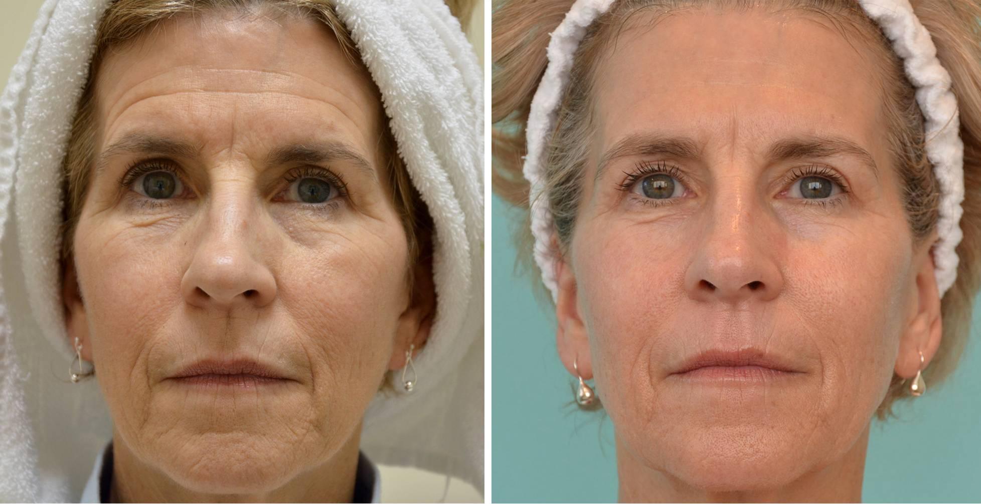 Особенности различных видов пилингов для кожи лица: до и после 40 лет