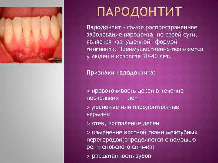 Немеет нижняя челюсть причины — лечение зубов