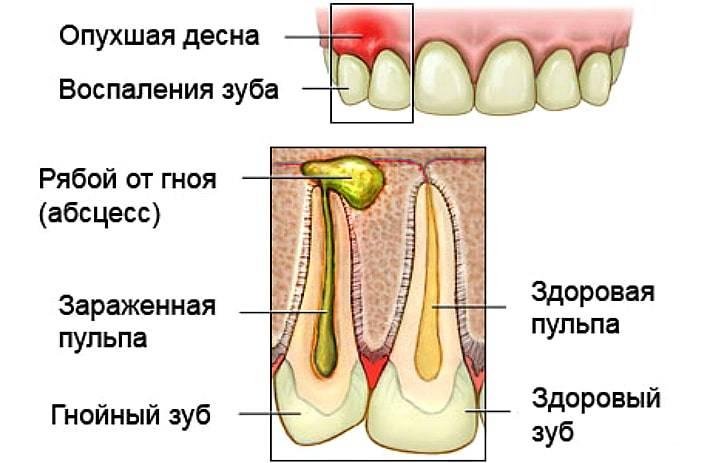Чем лечить шишку на десне. что делать зависит от вида заболевания