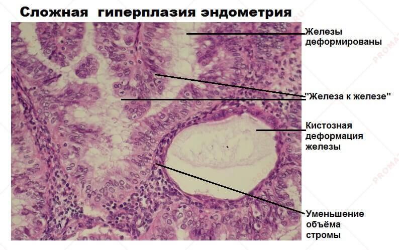 Гиперплазия эндометрия во время менопаузы лечение