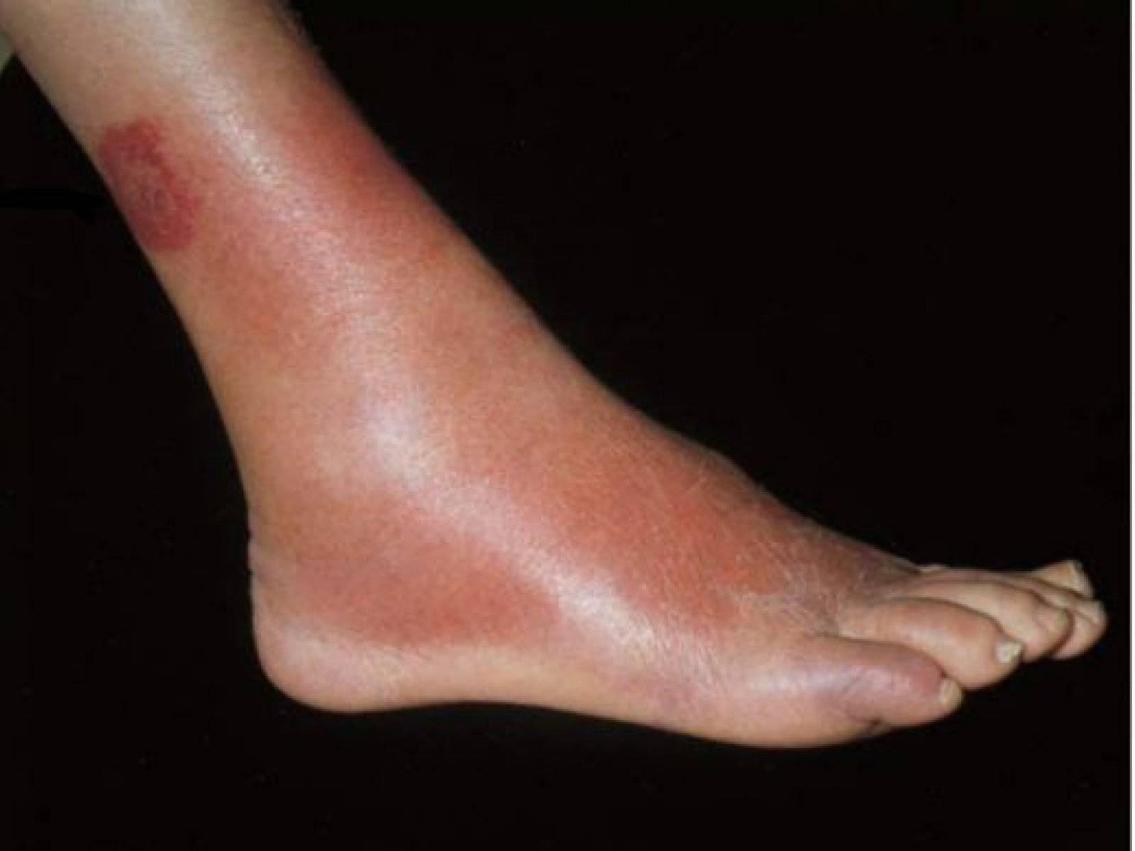 Рожистое воспаление ноги – причины, симптомы и лечение рожи на ноге