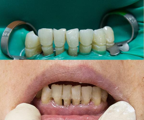 Имплантация зубов при пародонтите и пародонтозе
