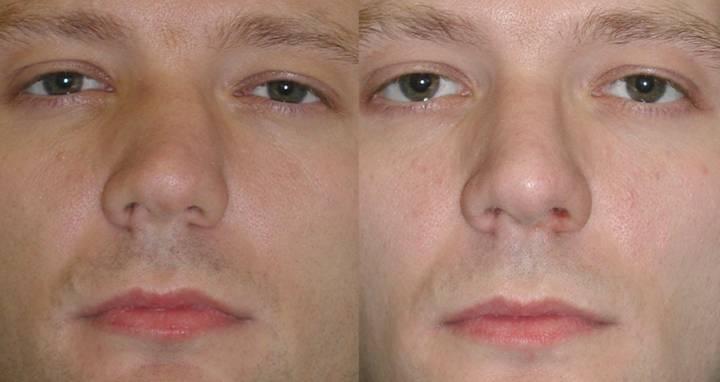 Подслизистая резекция носовой перегородки