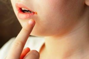 Заеды в уголках рта причины у ребенка лечение