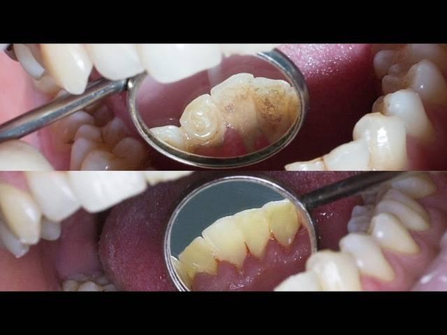 Чистка зубов от камня