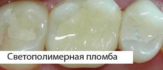 Можно ли курить после лечения и пломбирования зуба? рекомендации для разных случаев