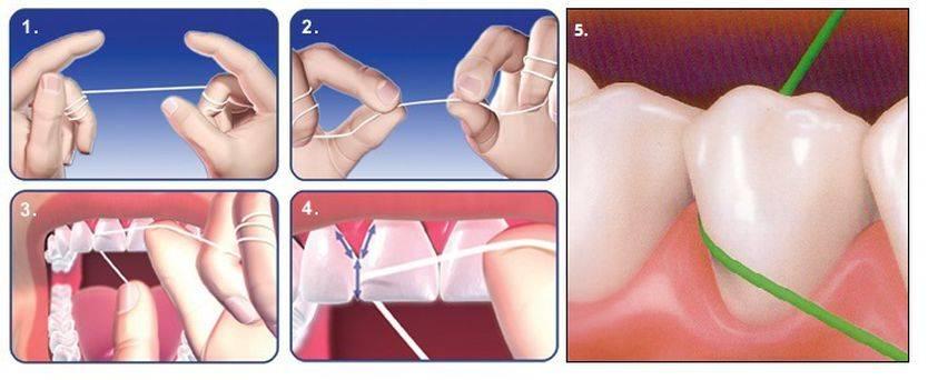 Как правильно пользоваться флоссом: техника чистки зубной нитью, польза и вред