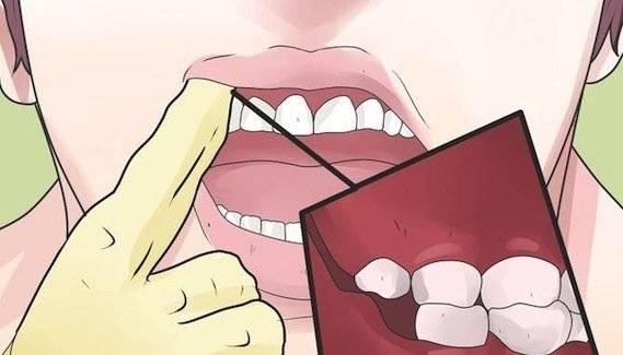 Кровяной пузыри, прыщи на языке, губе, во рту на щеке причины