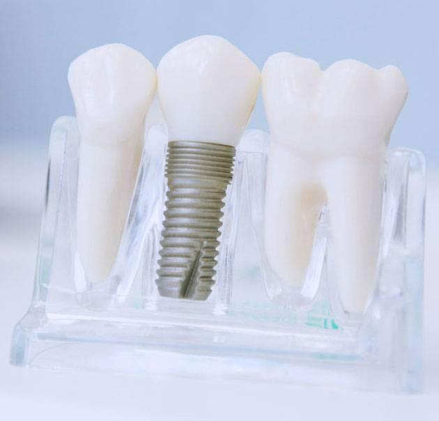 Важность установки временной коронки на имплант и методы ее изготовления