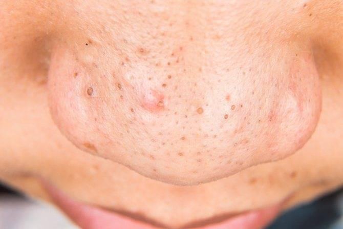 Черные точки на лице: на носу, щеках, подбородке. как избавиться от черных точек на коже
