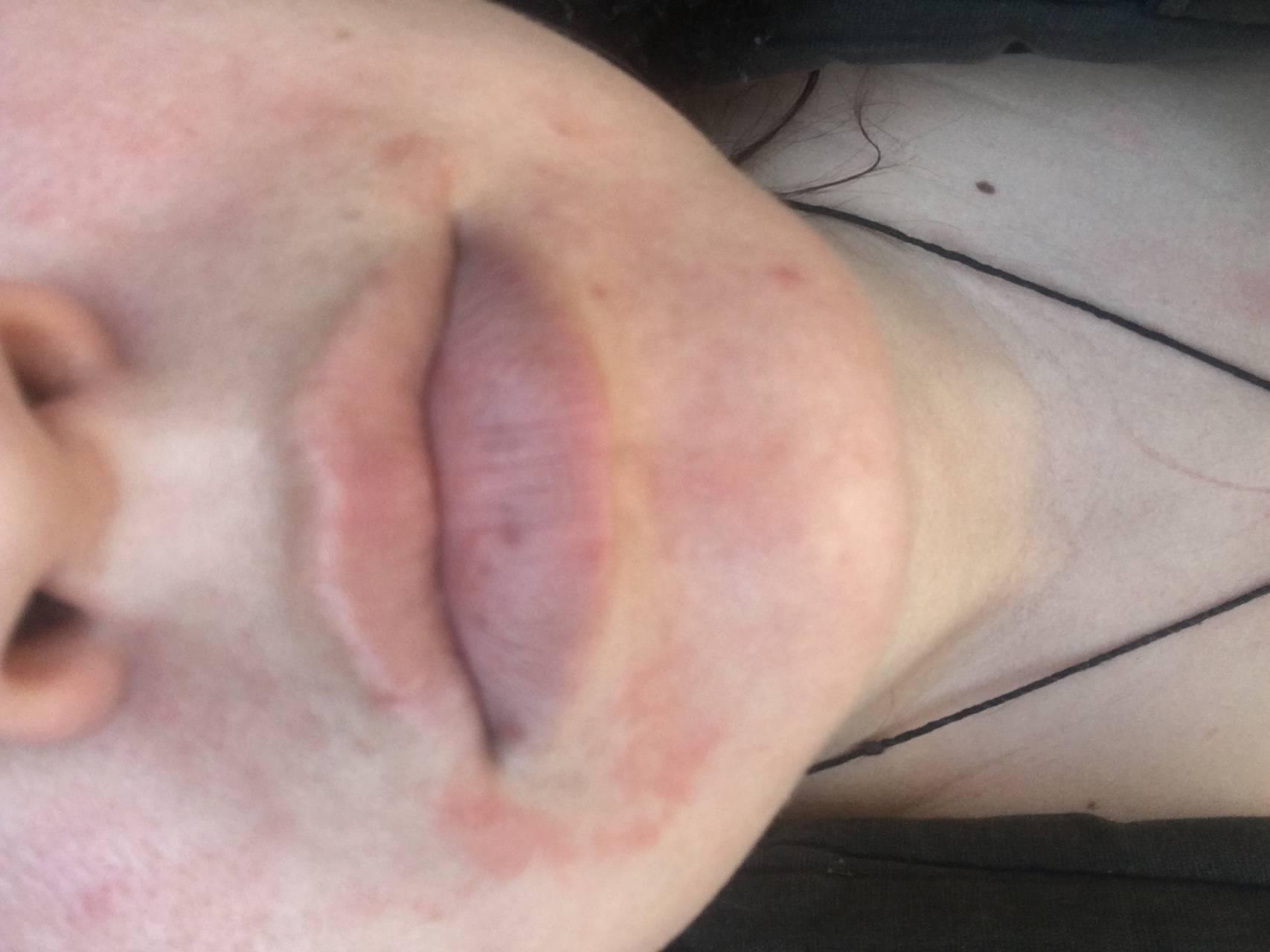 Причины и лечение красных пятен на лице