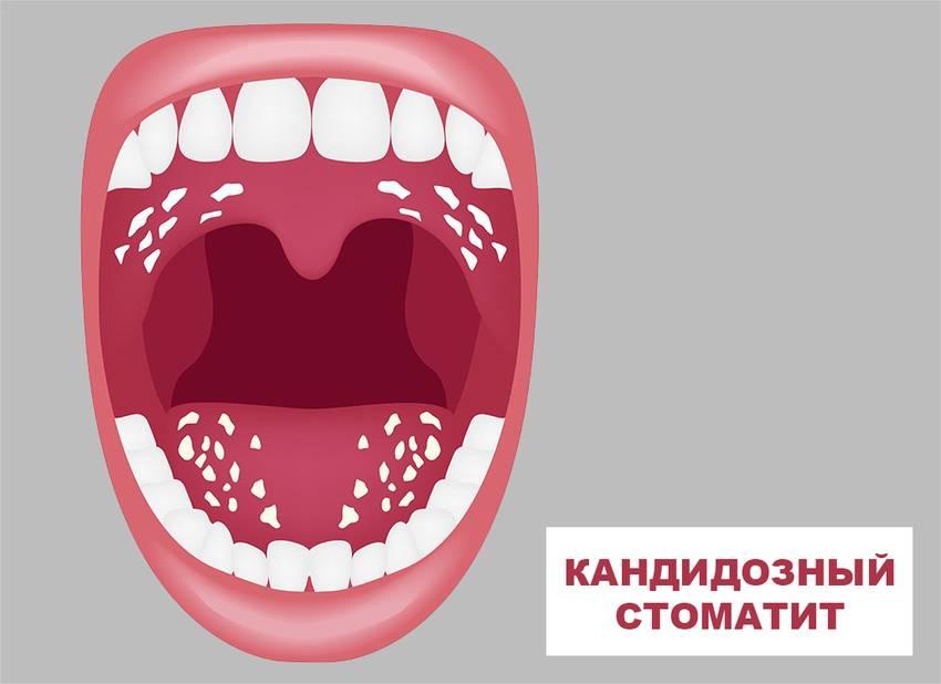Как лечить кандидоз (молочницу) полости рта
