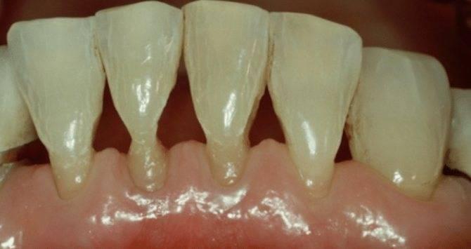 Шишка на десне около зуба – методики лечения образований