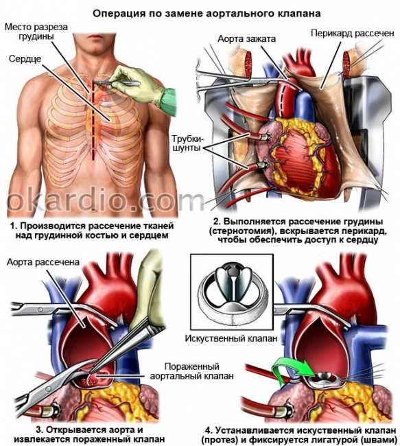 Лечение перелома грудины: последствия и симптомы
