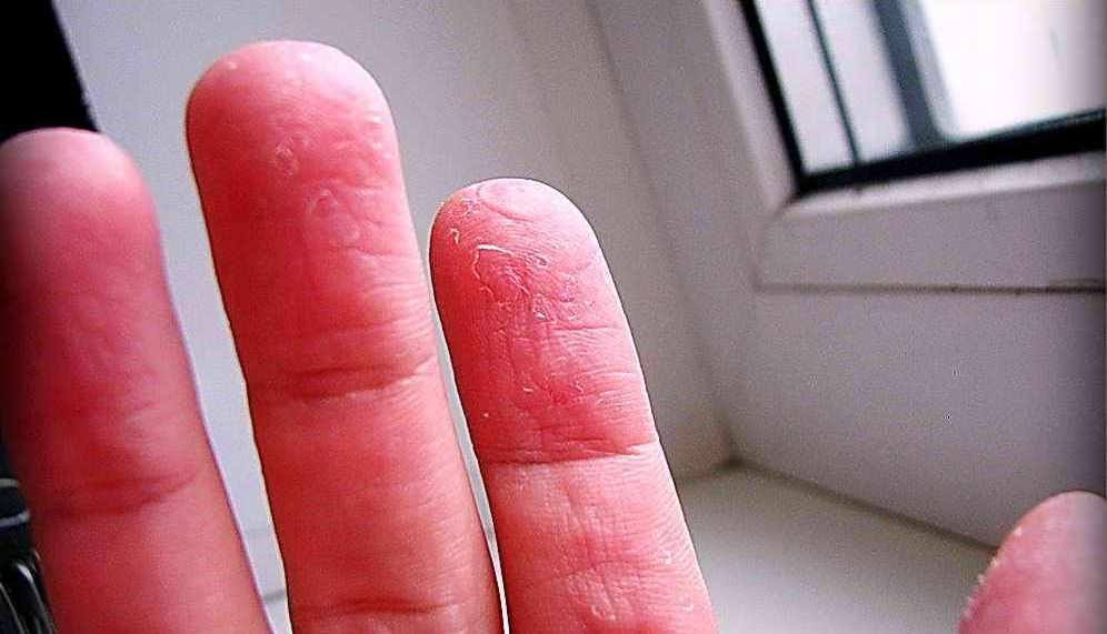 Трескается кожа на пальцах рук — основные причины появления, особенности диагностики и лечения (110 фото)