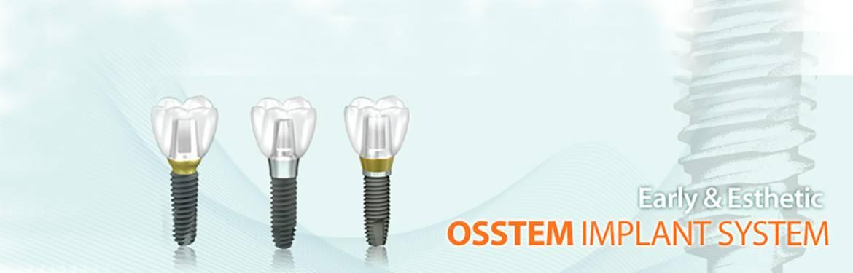 Импланты osstem — доступное решение премиум-класса
