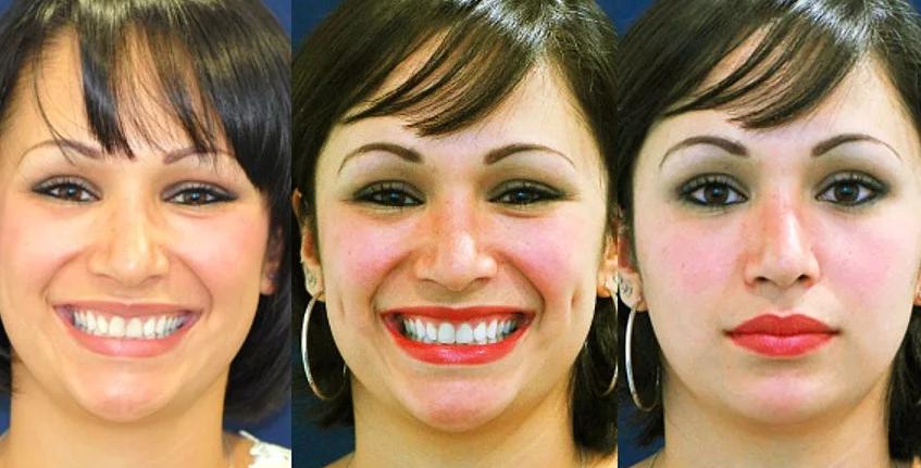 Ямочки на щеках. как сделать генетический дефект, фото до и после операции