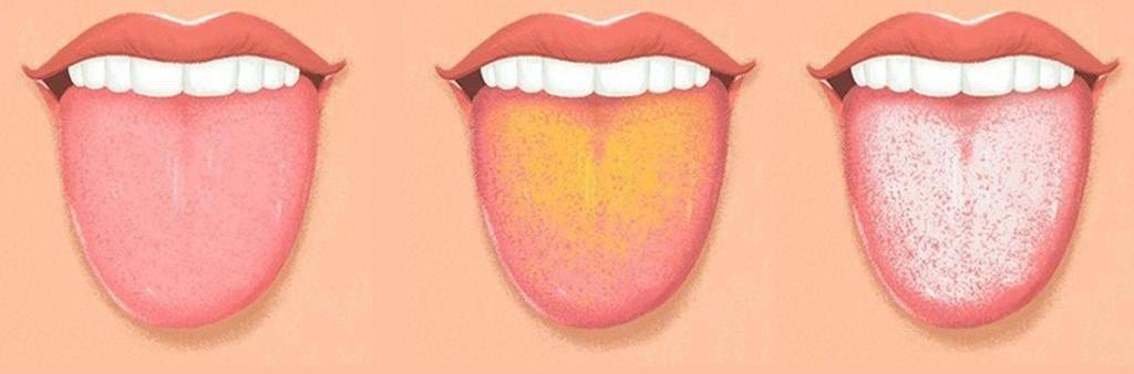 Причины появления красных, белых, темных, коричневых и «лысых» пятен на языке