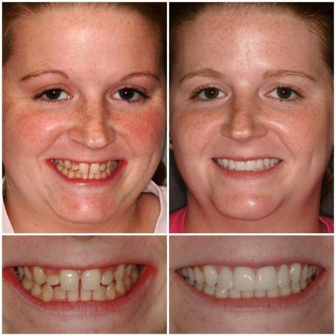 фото зубов с винирами картинки
