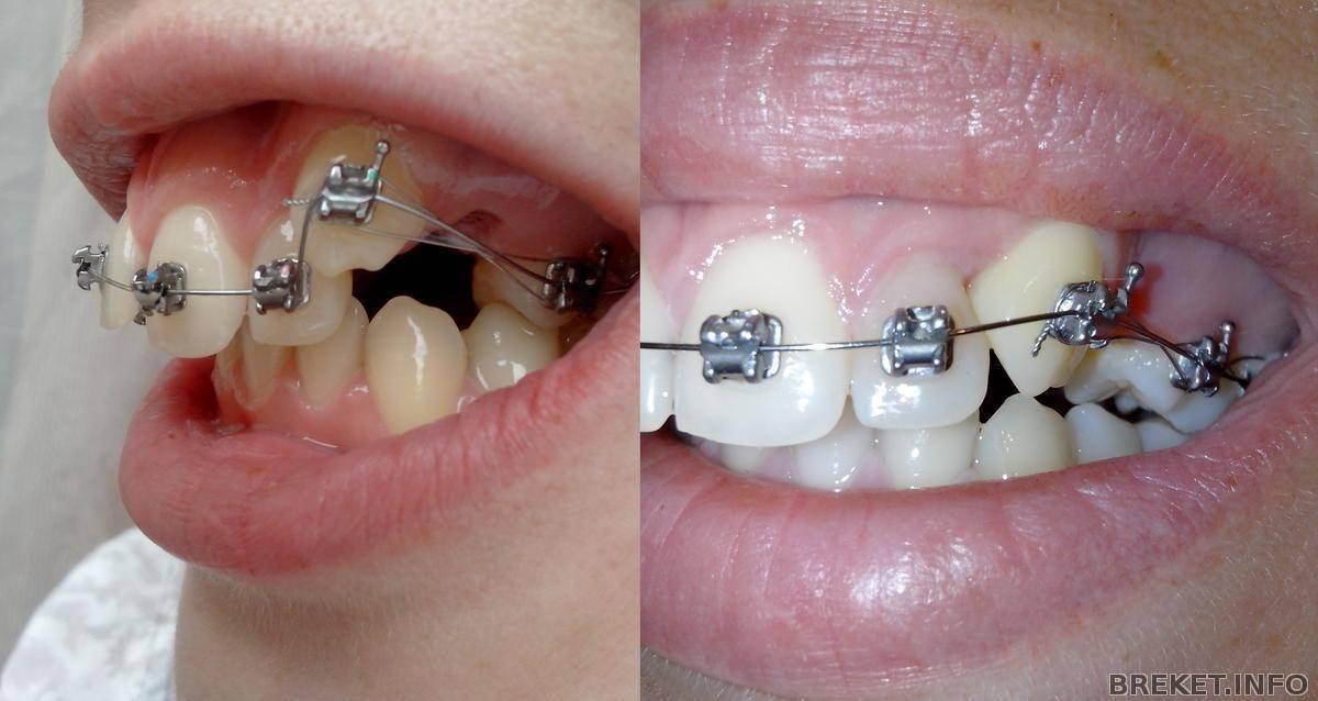 Можно ставить брекеты если нет одного зуба