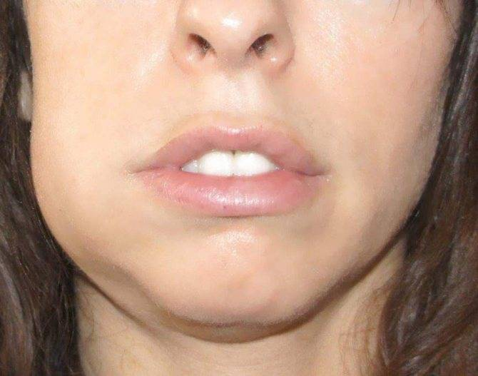 Болит челюсть: причины появления боли и ее незамедлительное лечение