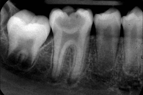 Как выглядят заболевания зубов на рентгене